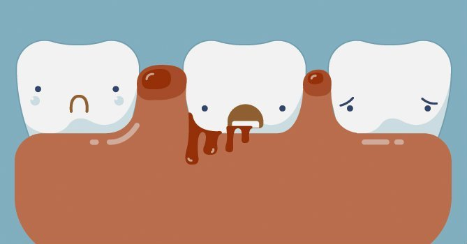 Tratamiento para la gingivitis