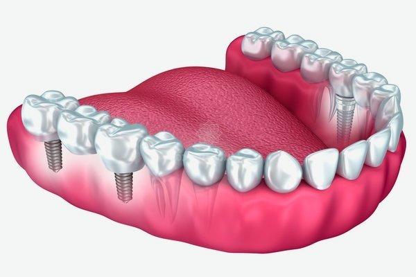 Ventajas prótesis dentales removibles