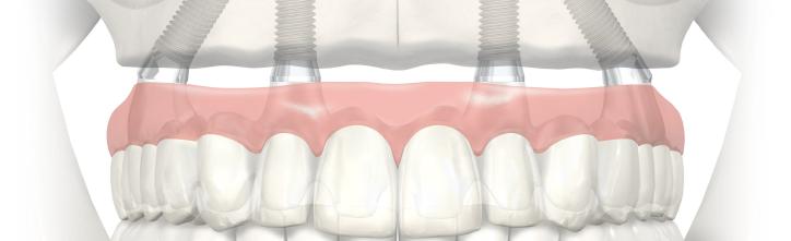 Clínica dental Malaga implantología dental