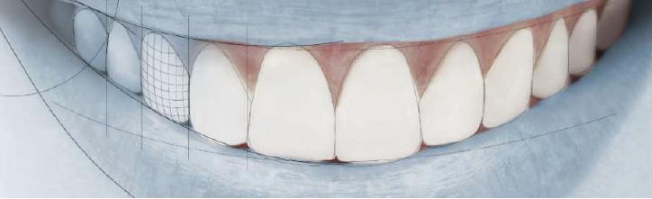 Dentistas Malaga carillas de porcelana