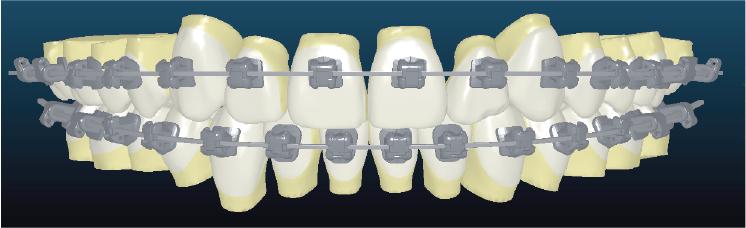 ortodoncia en Málaga