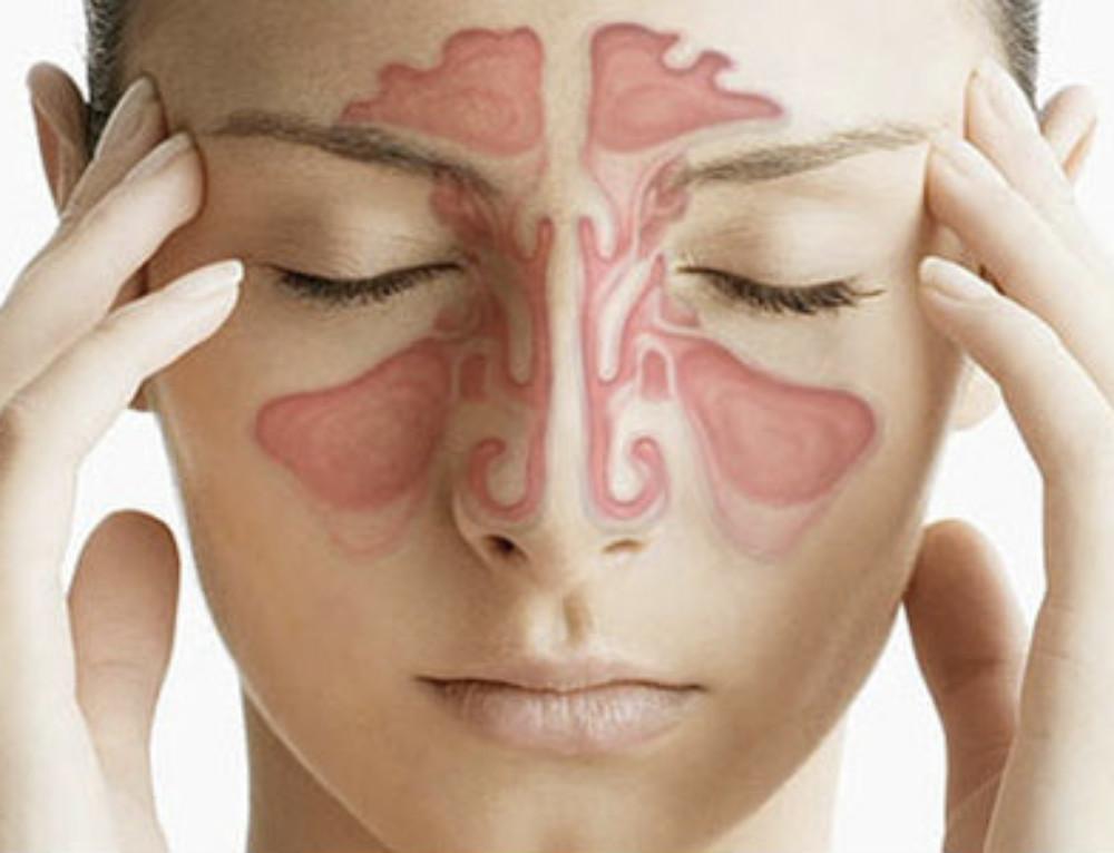 Sinusitis maxilar, síntomas y tratamiento