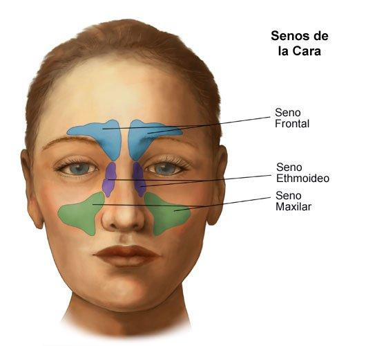 Sinusitis Maxilar tipos