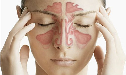 sinusitis maxilar