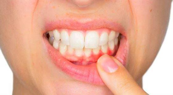 Por que aparecen los abscesos dentales