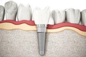 Síntomas de rechazo implantes dentales