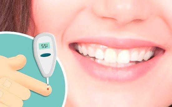 Síntomas de rechazo a implantes dentales por diabetes