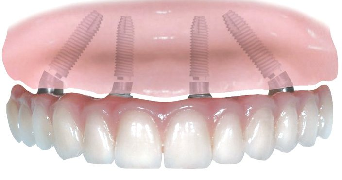 Síntomas rechazo implantología dental