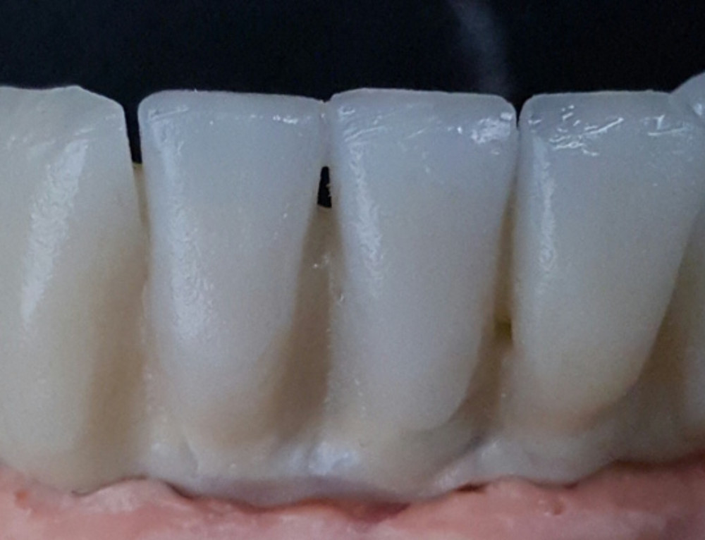 Dentadura sobre implantes, uno de los tratamientos más demandados.