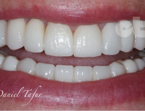 Técnica conjunta de rehabilitación oral, ortodoncia y estética