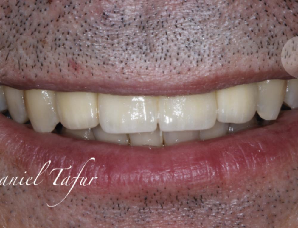 Caso de periimplantitis – implantes dentales