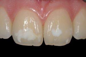 Estética dental en Clínica dental Tafur