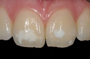 Estética dental en Clínica dental